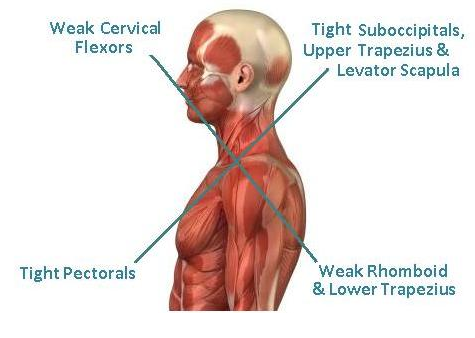 UPPER CROSSED SYNDROME