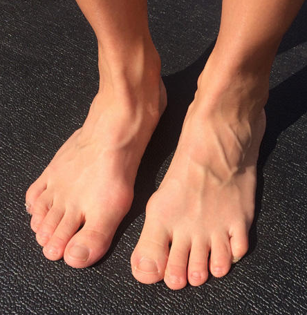 "Diana's ""complicated"" Feet"